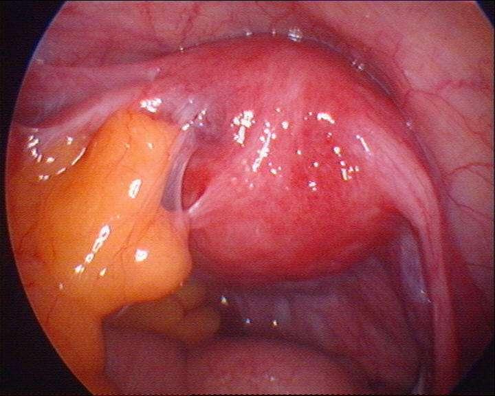 gynecology postoperative adhesions