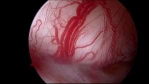 Angiogenesis inside a superficial ovarian endometriotic implant